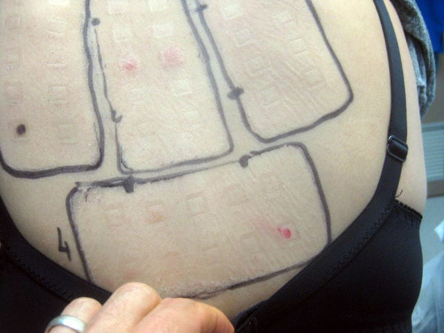 Allergy Patch Test - Second Skin Dermatology